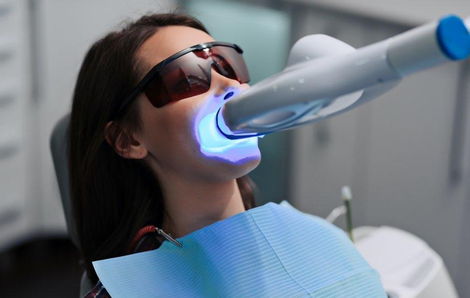 Blanqueamiento dental en guayaquil aclara tus dientes