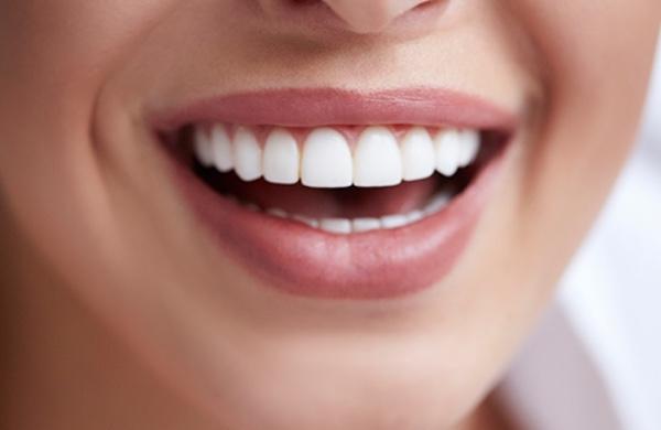Diseño sonrisa en guayaquil rehabilitación odontología estetica