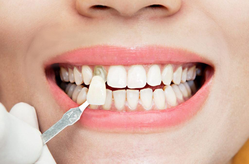 diseño-de-sonrisa-con-carillas-de-resina-porcelana-en-guayaquil