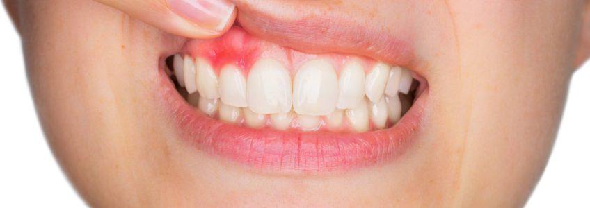 periodoncia en guayaquil enfermedad de las encias